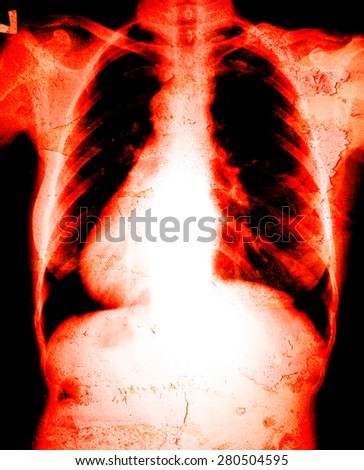 Chest x-ray danger - stock photo