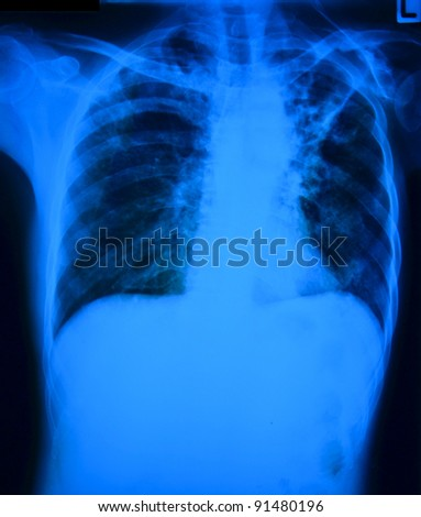 Chest x-ray film of patient with pulmonary tuberculosis, man.