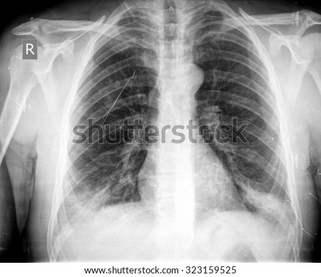 Chest X-ray image - stock photo