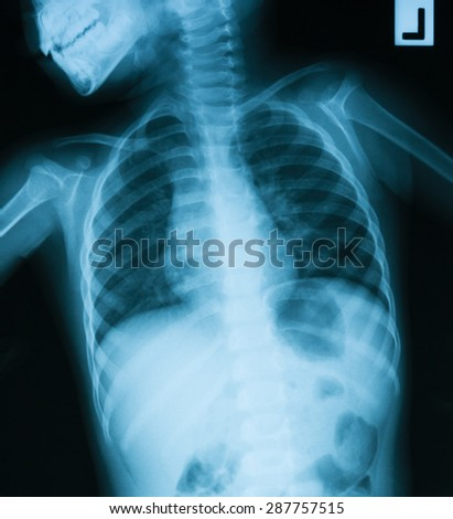 Chest X-ray image of a young boy.