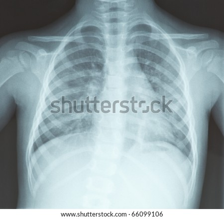 chest x-ray, lungs, of young girl - diagnosis - stock photo