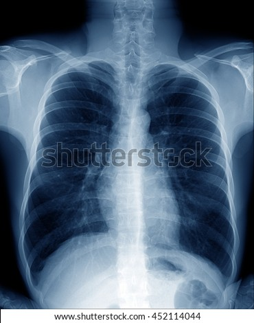 Chest Xray Normal Healthy Man Show Stock Photo Royalty Free