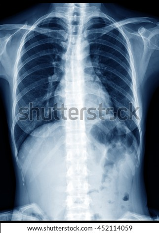 Chest x-ray of normal healthy woman show lung, heart, spine, clavicle, diaphragm