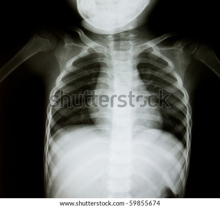 Chest x-ray of  young boy