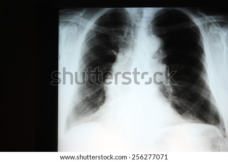 Chest X-ray showing hyperinflation of the lungs compatible with COPD. The wide mediastinum is due to a tortuous thoracic aorta. - stock photo