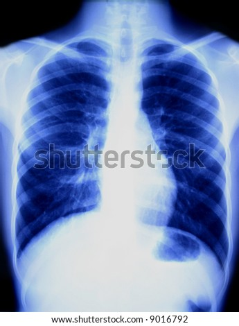 Chest x-ray showing the heart and lungs.