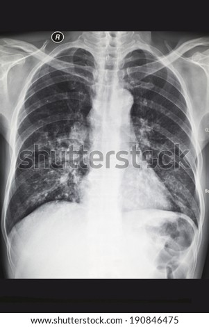 Chest X-ray, X-ray film - stock photo