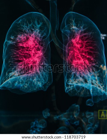 chest X-rays under 3d image ,lungs 3d image show pulmonary disease - stock photo