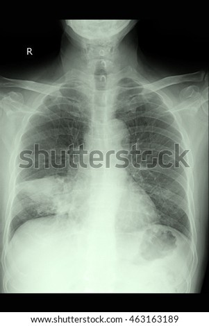 Chest xray and Ca lung