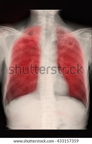 chest xray ; infiltration left lung : TB lung - stock photo