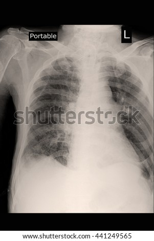chest xray portable : cradiomegaly : infiltration both lung - stock photo