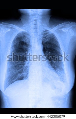chest xray : show infiltration both lung  - stock photo
