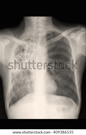 Chest xray : show infiltration right lung
