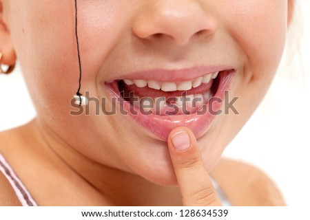 Child pointing to missing teeth, pulled out with a string - closeup on mouth