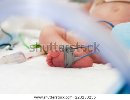 Child's foot with oximeter in intensive care unit - stock photo