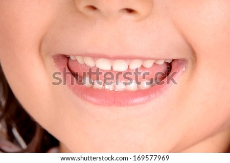 child teeth close up isolated in white - stock photo