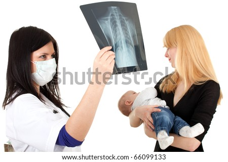 child with mother at doctor - female doctor reading x-ray lung and examining baby - stock photo