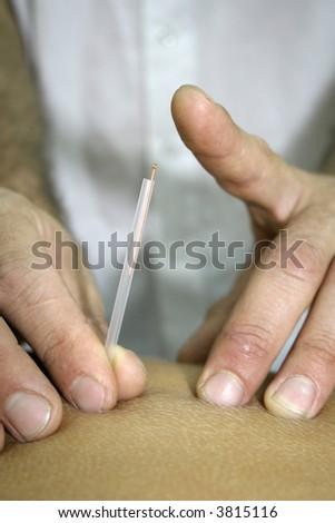 chinese medicine treatment - stock photo
