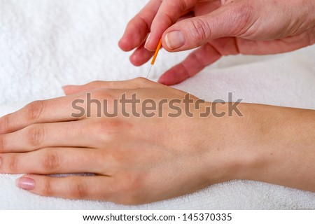 Chiropractor applying acupuncture needles. Close-up of a chiropractor applying acupuncture needles over a white towel - stock photo