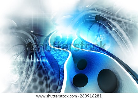 Cholesterol plaque in artery - stock photo