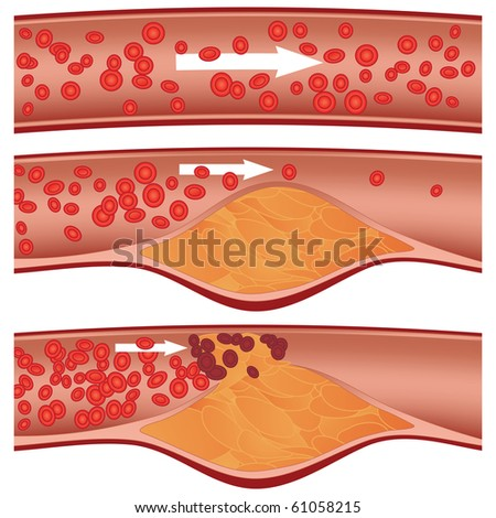 Cholesterol plaque in artery (atherosclerosis) illustration. Top artery is healthy. Middle & bottom arteries show plaque formation, rupturing, clotting & blood flow occlusion. - stock photo