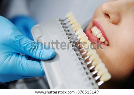 choose the color of the teeth - stock photo