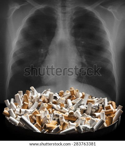 Cigarette smoke damages lungs - stop smoking! Ashtray full of cigarette ends with lungs background  - stock photo