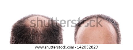 circular hair loss at the back of the head and receding hairline at the front - stock photo