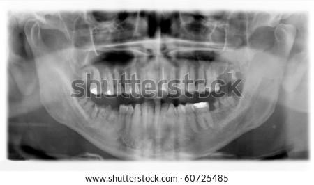 clinical checkup X-ray dental detail - stock photo