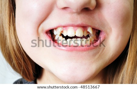 close up - bad  crooked teeth of girl - stock photo