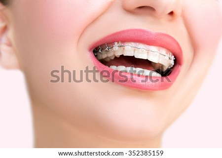 Close up Ceramic and Metal Braces on Teeth. Beautiful Female Smile with Self-ligating Braces. Orthodontic Treatment.  - stock photo