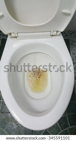 Close-up dirty urinate in lavatory