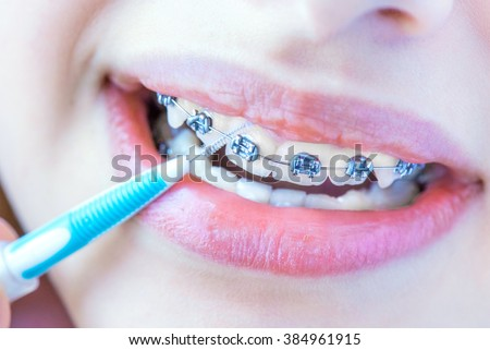 Close up female teeth with braces and interdental brush for dental braces hygiene.  - stock photo
