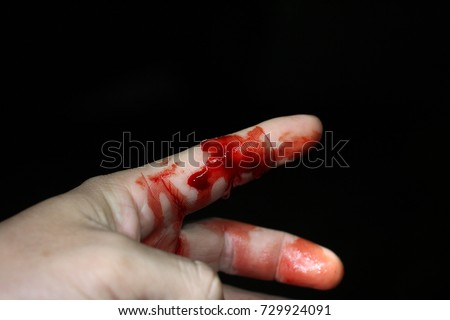 Hand Cut Blood Stock Images, Royalty-Free Images & Vectors ...