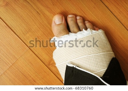 Close up image of male with broken foot in cast - stock photo