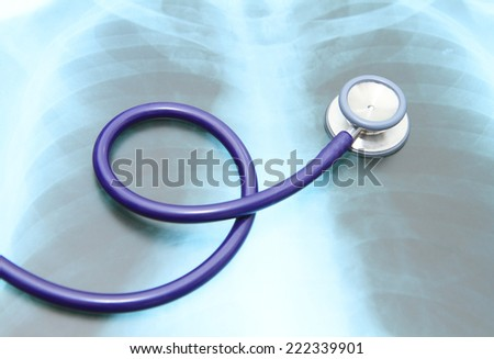 Close up image of stethoscope on top of x-ray film