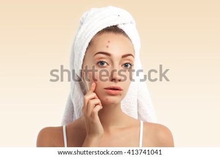 Close up isolated portrait of beautiful young Caucasian woman with blue eyes and problem skin, looking at the camera, pointing at pimple wearing white towel on her head against blue studio background  - stock photo