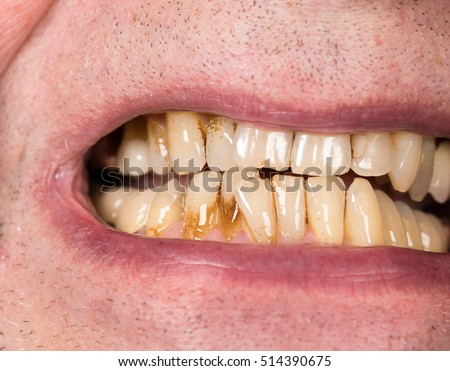 Close up macro of teeth of patient with receding gums and bad plaque on uneven teeth prior to cleaning and root planing