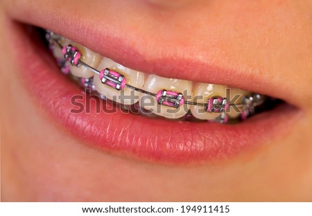 Close up of a beautiful pink braces - stock photo