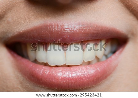 close-up of a beautiful woman mouth white teeth and glossy lips - stock photo