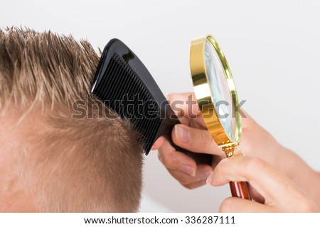 Close-up Of A Doctor Looking At Patient's Hair Through Magnifying Glass - stock photo