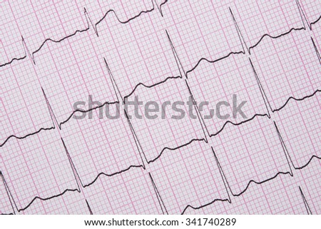 Close up of a Electrocardiograph also known as a EKG or ECG graph