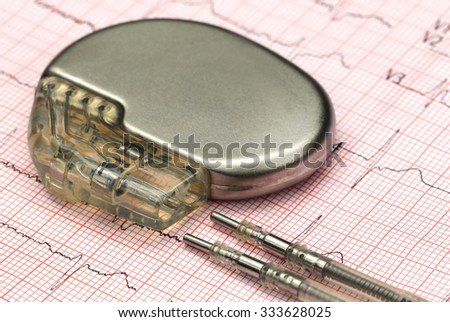 Close up of a pacemake on Electrocardiograph - stock photo