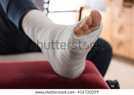 Close up of a young man's fiberglass / Plaster leg cast and toes after a running injury  - stock photo