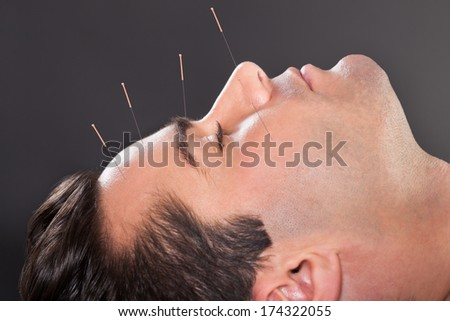 Close-up Of A Young Man Undergoing Acupuncture Treatment At Spa - stock photo