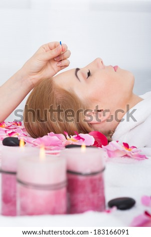 Close-up Of A Young Woman Getting Acupuncture Treatment - stock photo
