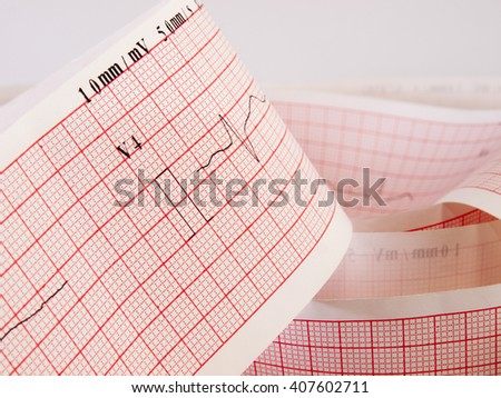 Close up of an electrocardiogram analysing for heart disease problem. - stock photo