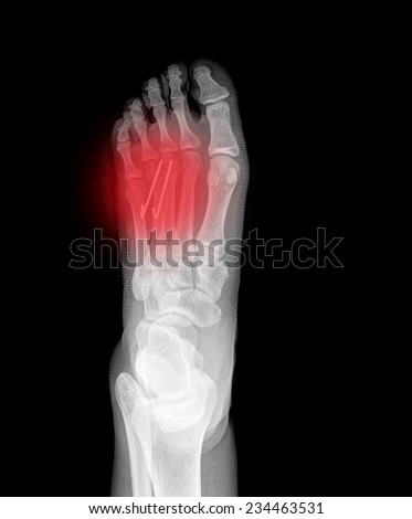 close up of an xray of a foot