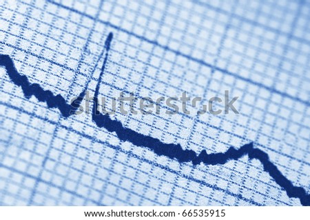 Close-up of cardiogram as background. Monochrome blue toned image. - stock photo