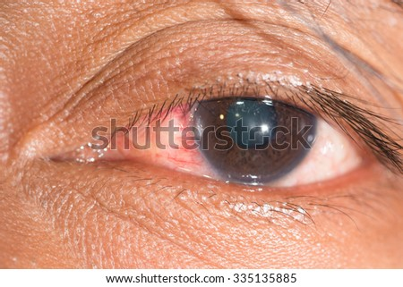 close up of corneal foreign body during eye examination. - stock photo